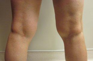 Manhattan liposuction before 4